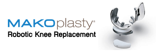 Makoplasty Robotic Knee Replacement
